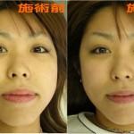 小顔矯正の効果は自分の手で分かる