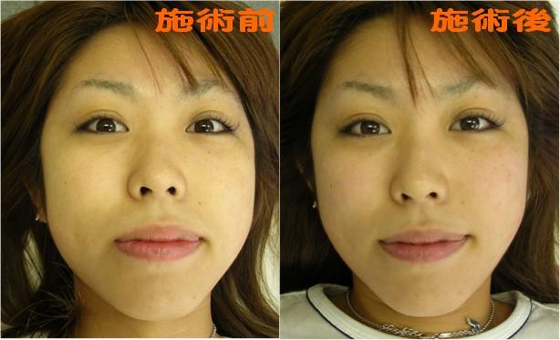 小顔矯正の効果を自分で確認