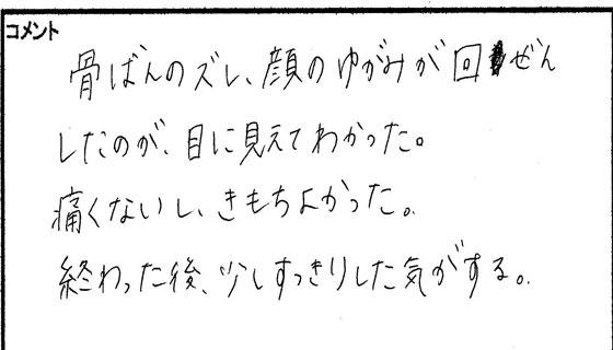 小顔矯正体験談01