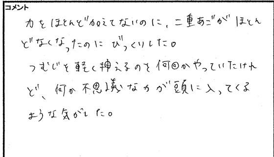 小顔矯正体験談03