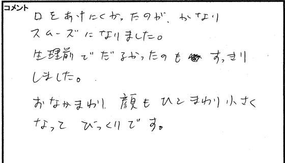 小顔矯正体験談05