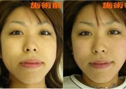 小顔矯正施術の前後を比較